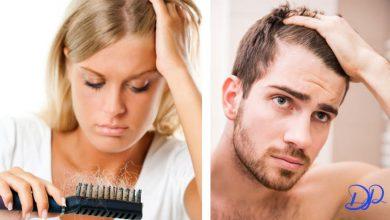 تصویر از علت ریزش مو چیست و چگونه باید آن را درمان کرد؟