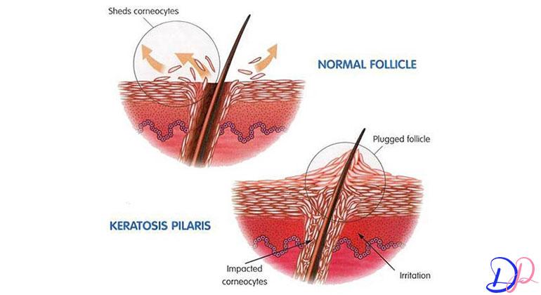 درمان پوست مرغی با لیزر